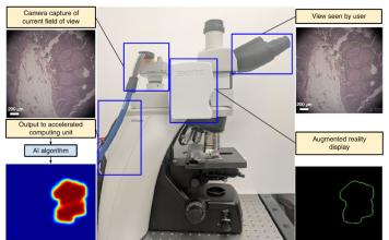 Augmented Reality Microscope (ARM)