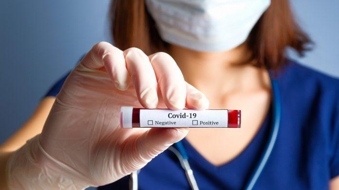 Covid-19 e analisi del sangue