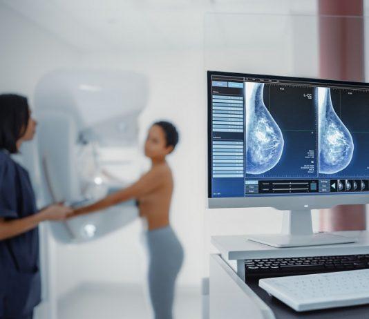 Scan mammella